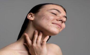 Vitamin D-acne (002)
