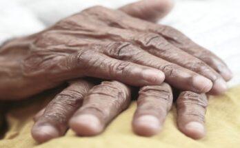 Enteropathic Arthritis (002)